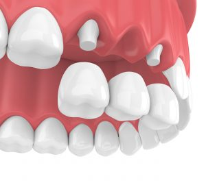 Digital rendering of tooth bridge being placed on anchoring dental implants