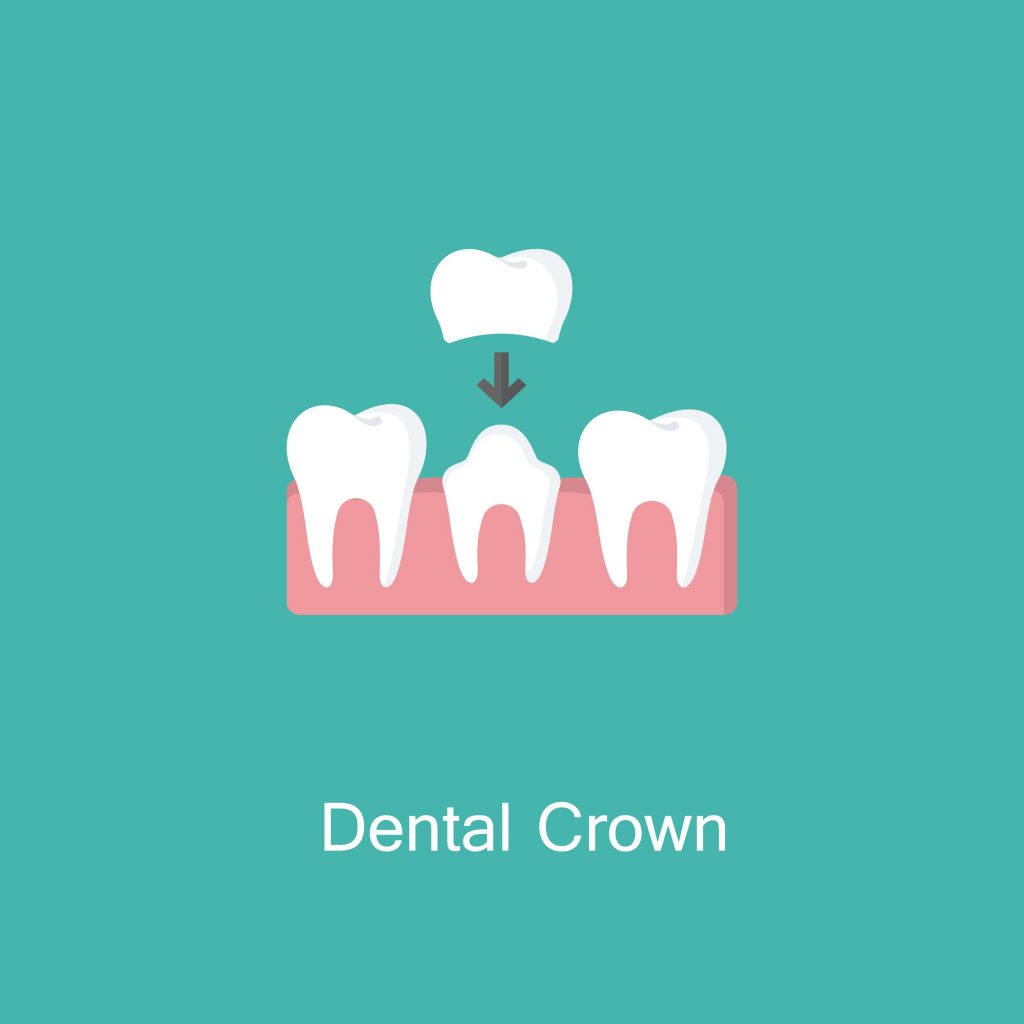 Illustration of dental crown being placed on a damaged tooth
