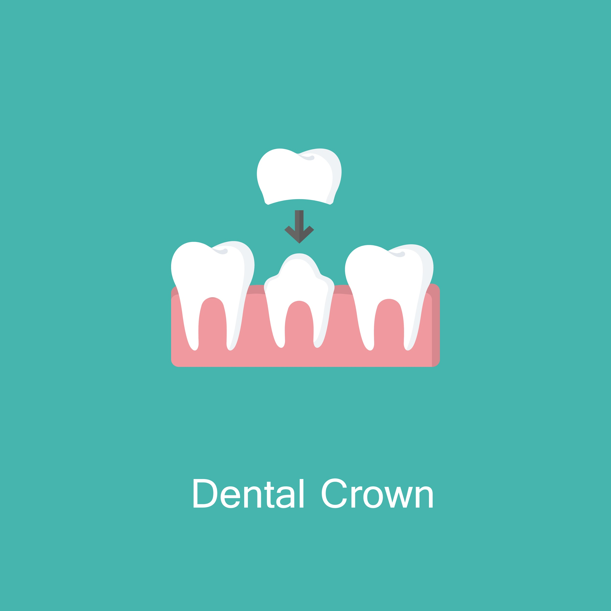 c0993a7b069 Illustration of dental crown being placed on a damaged tooth