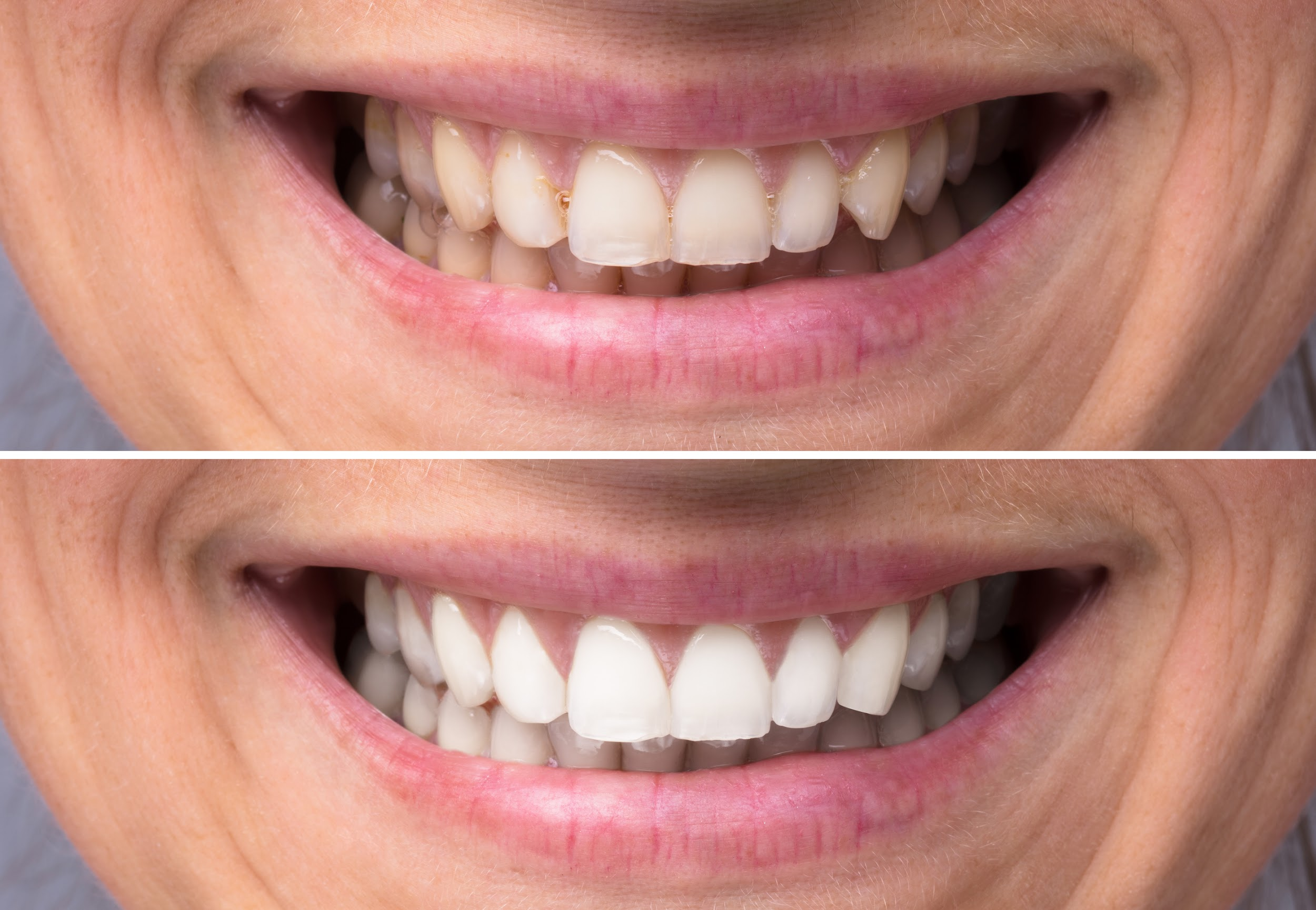 Before and after shots of a man's smile with whiter teeth